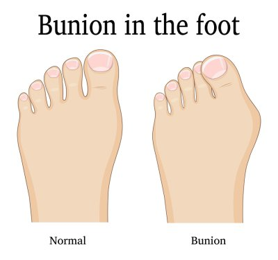 bunions in feet